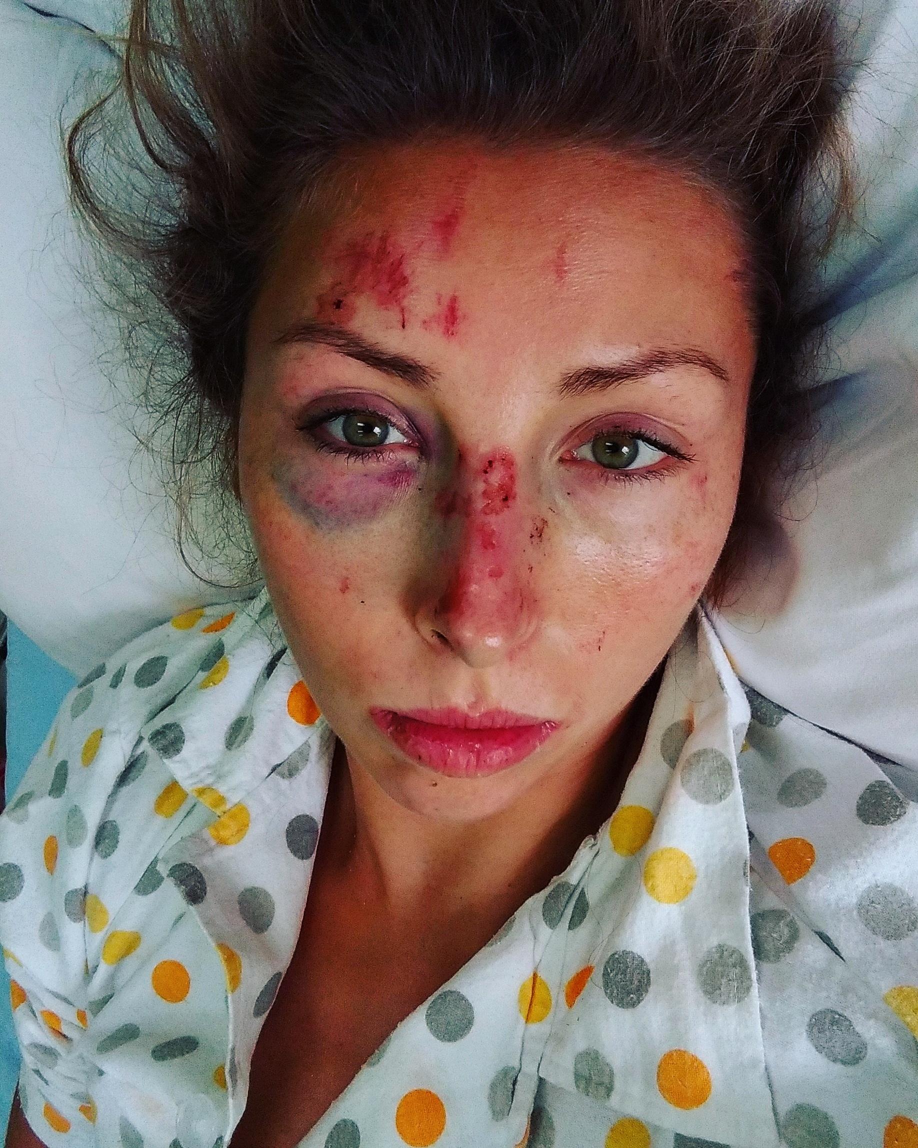 Anna Wierzbowska po wypadku